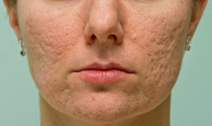 how to remove acne scars